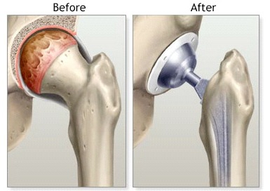 TotalHipReplacement_-_Before__After